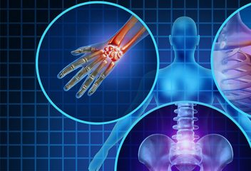The 3 Triggers of Chronic Inflammation
